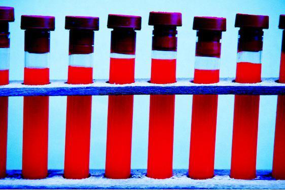 Sida : les vertus insoupçonnées d'un médicament contre l'alcoolisme