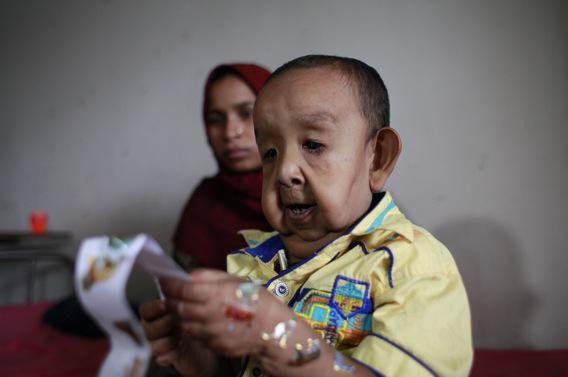 Bangladesh : un enfant de 4 ans a l'apparence d'un vieillard