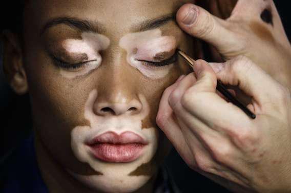 Vitiligo : un traitement révolutionnaire pour faire disparaître les tâches