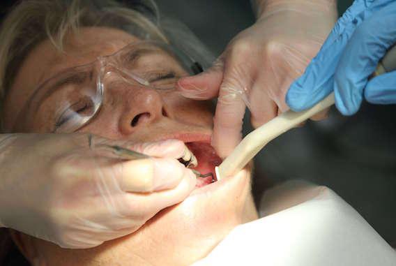Soins dentaires : une fraise finit dans le poumon d'un patient