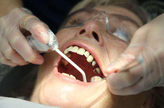 L'inflammation bucco-dentaire augmente le risque cardiovasculaire