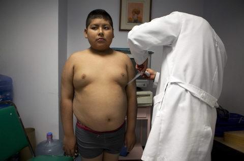 Cancer colorectal : les ados obèses deux fois plus à risque après 50 ans