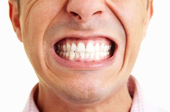 Une bactérie logée dans les dents augmenterait les risques d'AVC
