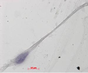 Spermatozoïdes in vitro : encore un long chemin pour les chercheurs lyonnais