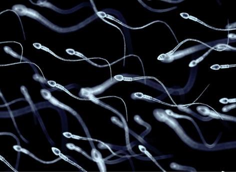 Contraception masculine : une injection permettrait d'être protégé pendant plus de dix ans