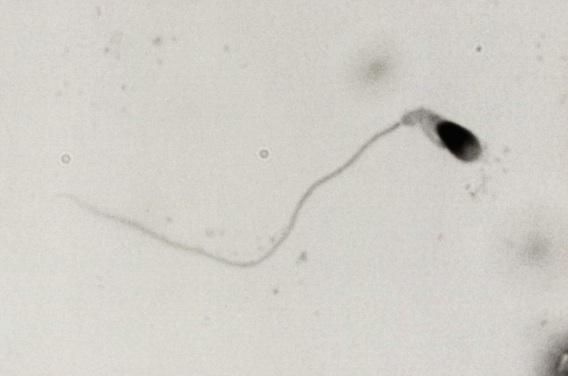 Assistance à la procréation : des Français auraient créé des spermatozoïdes in vitro
