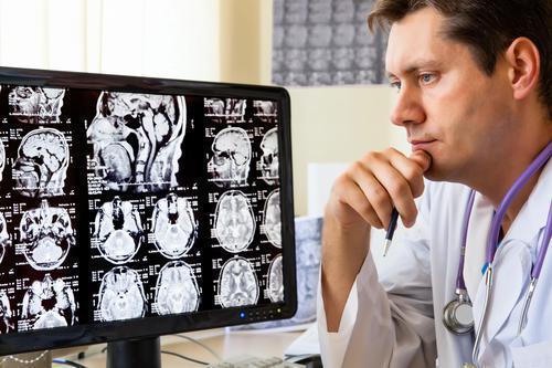 Cerveau : des compléments alimentaires pour retarder le vieillissement