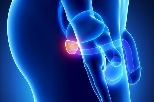 Cancer de la prostate : l'IRM pour éviter des examens invasifs