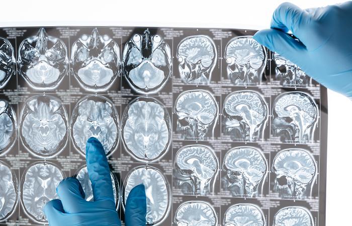 Dépression et anxiété sociale unies dans le cerveau