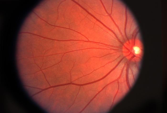 Alzheimer: une détection précoce dans la rétine