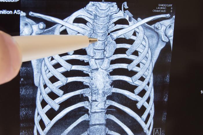 Un anticorps contre les métastases osseuses divise leur fréquence par 100