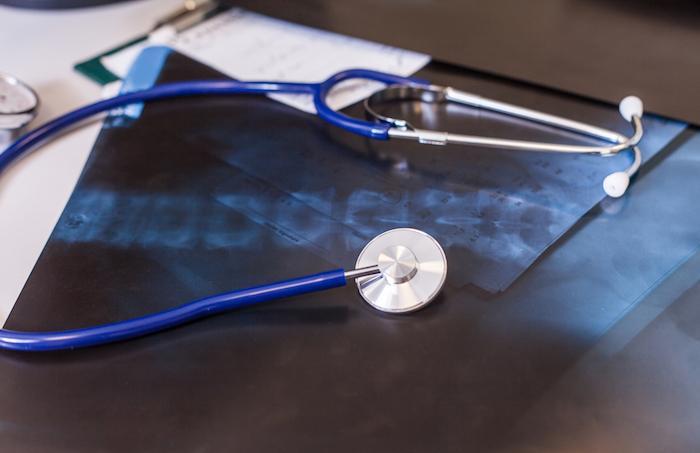 Le calcium et la vitamine D pas toujours utiles pour la prévention des fractures