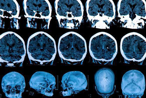 Parkinson : les vertus insoupçonnées d'un antibiotique