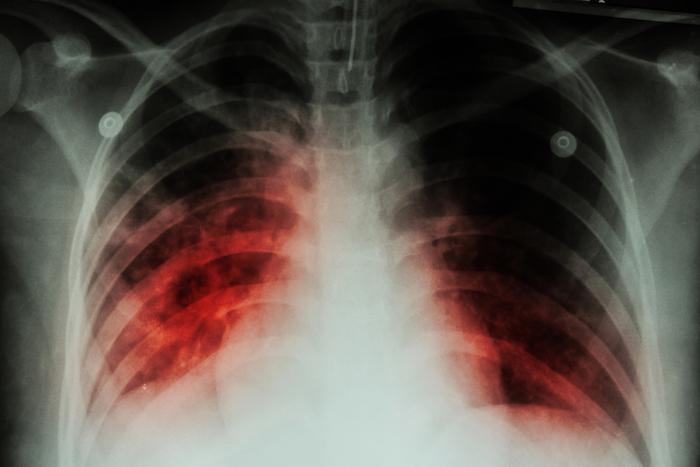 Tuberculose : dépistage dans sept écoles de la Vienne