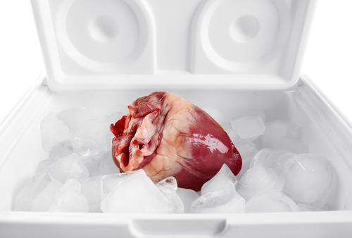 Transplantation : une méthode pour mieux préserver les organes