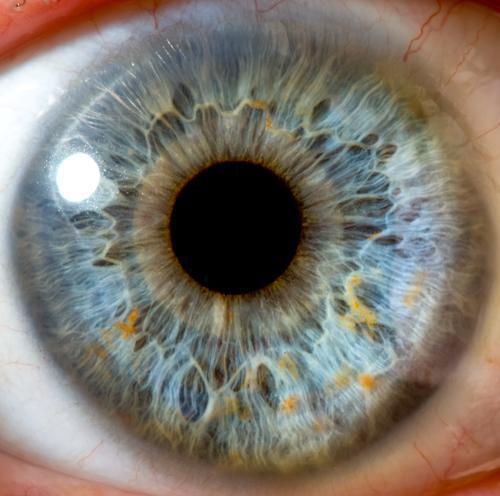 Chirurgie de l'oeil : une première mondiale réalisée avec un robot