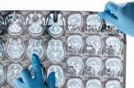 La protéine de la maladie d'Alzheimer se propagerait dans le cerveau comme une infection