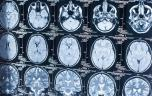 Avancée majeure dans la connaissance du cerveau : création d'une banque d'images de référence par IRM