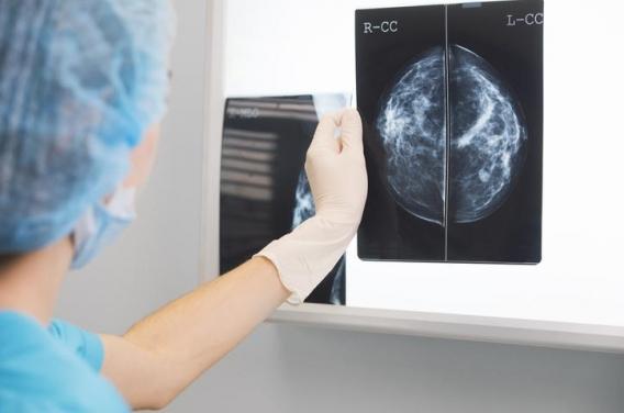Cancer du sein: une nouvelle technique de mammographie pourrait réduire le recours à la biopsie