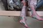 Lésions médullaires : 5 paraplégiques bougent à nouveau leurs jambes