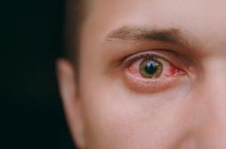 L'examen des cils peut révéler des maladies oculaires