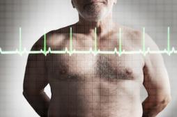 1 décès sur 3 est dû à une maladie cardiovasculaire
