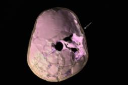 Traumatisme crânien : le plus ancien cas remonte au Paléolithique