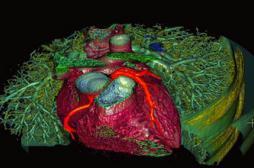Les insuffisants cardiaques sous surveillance rapprochée