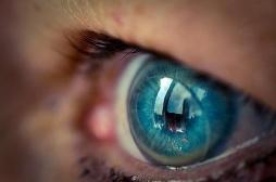 Cataracte : 27 lentilles retrouvées dans l'oeil d'une Anglaise