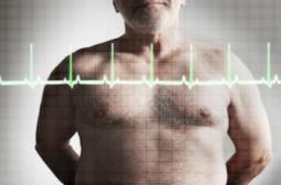 Insuffisance cardiaque : la mortalité a baissé de 30 % en 10 ans