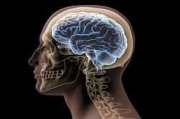Big Brain : le cerveau humain découpé en 7400 tranches