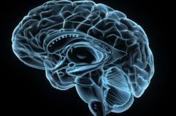 Lésions cérébrales : quand un hémisphère compense les défaillances de l'autre