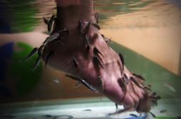 La fish pédicure présente des risques...