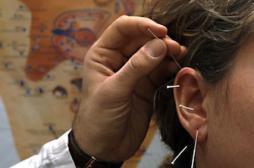 Maigrir avec l'acupuncture auriculaire
