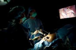 La chirurgie bariatrique réduit le risque de cancer de l'utérus