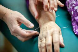 Fibromyalgie : l'acupuncture atténue la douleur