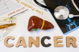 Cancer du foie : un essai d'immunothérapie cellulaire à Rennes