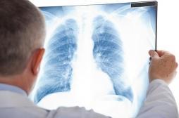 Cancer du poumon : 15 mois de rémission grâce à une thérapie ciblée