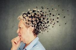 """Alzheimer: le cerveau des malades """"vibre"""" différemment"""