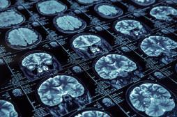 Alzheimer : des fuites répérées dans le cerveau