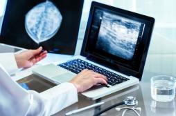 Dépistage du cancer du sein : une baisse mais pas historique
