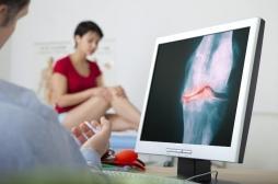 Arthrose : un mode de vie sain efficace en prévention