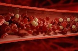 Covid-19 et thrombose : le piège de l'effet «spiderman» des neutrophiles