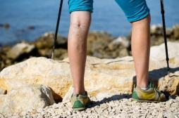 Les sept stades de l'évolution de la maladie veineuse