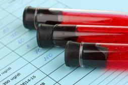 Diabète : les séropositifs sont plus exposés
