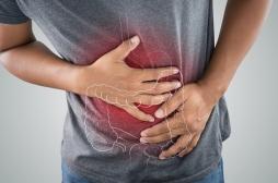 Colopathie fonctionnelle : l'espoir d'un traitement