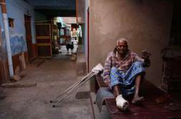 Lèpre : des malades de plus en plus contagieux