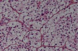 Cancer du rein : avancées majeures avec 2 molécules