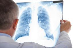 Cancer du poumon : une application améliore le suivi des malades