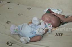Indonésie : un bébé naît avec deux visages et deux cerveaux
